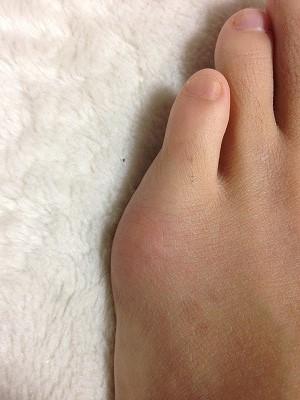 20150208左足小指下