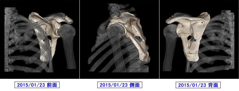 カレンダー カレンダー 2015 データ : 肩甲骨骨折最後の診察 - ゴルフ ...