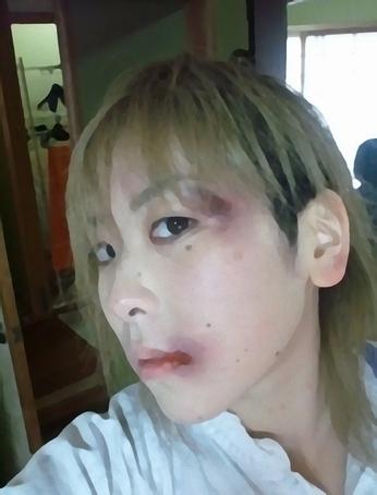 顔面崩壊した安川悪斗の画像