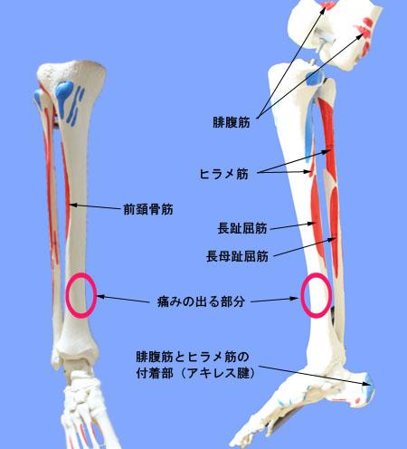 下肢の骨2(シンスプリント)