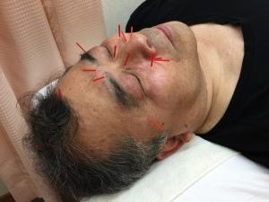 花粉症治療眠くならない鍼大阪