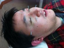 花粉症の鍼治療
