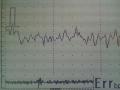 心電図10