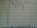 心電図11