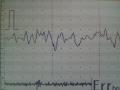 心電図12
