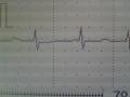 約25kgの浮腫が引けた時の心電図 体重44kg程度