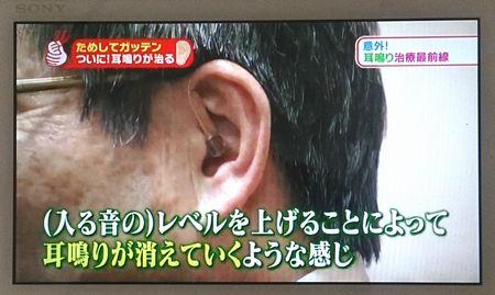 耳鳴りと補聴器7