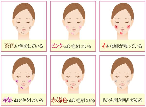 ニキビ跡のシミ・茶色・ピンク・赤い炎症.png