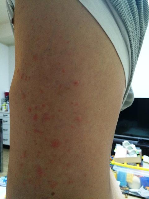 初日の発疹