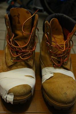 ブーツ治療中2