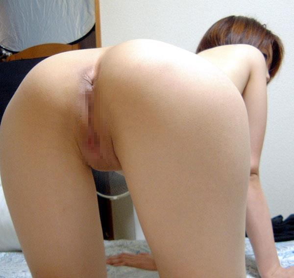 肛門 画像 7