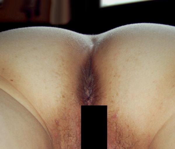 肛門 画像 35