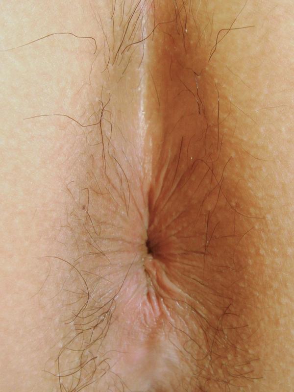 肛門 画像