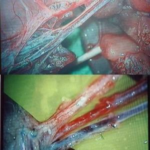 rat vascular anast