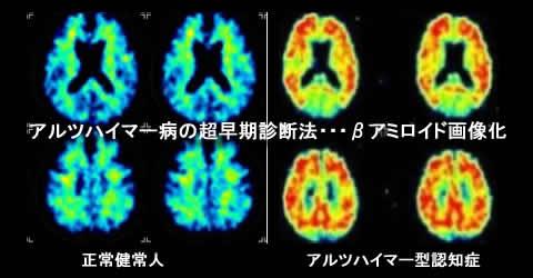 201007050041458d1.jpg